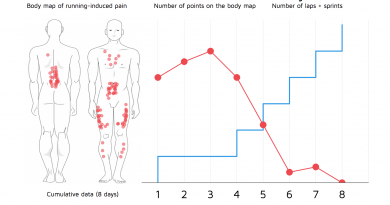 body map of the pain induced by running after prolonged period of inactivity